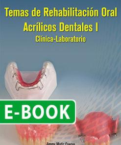 Temas de rehabilitación oral Acrílicos dentales